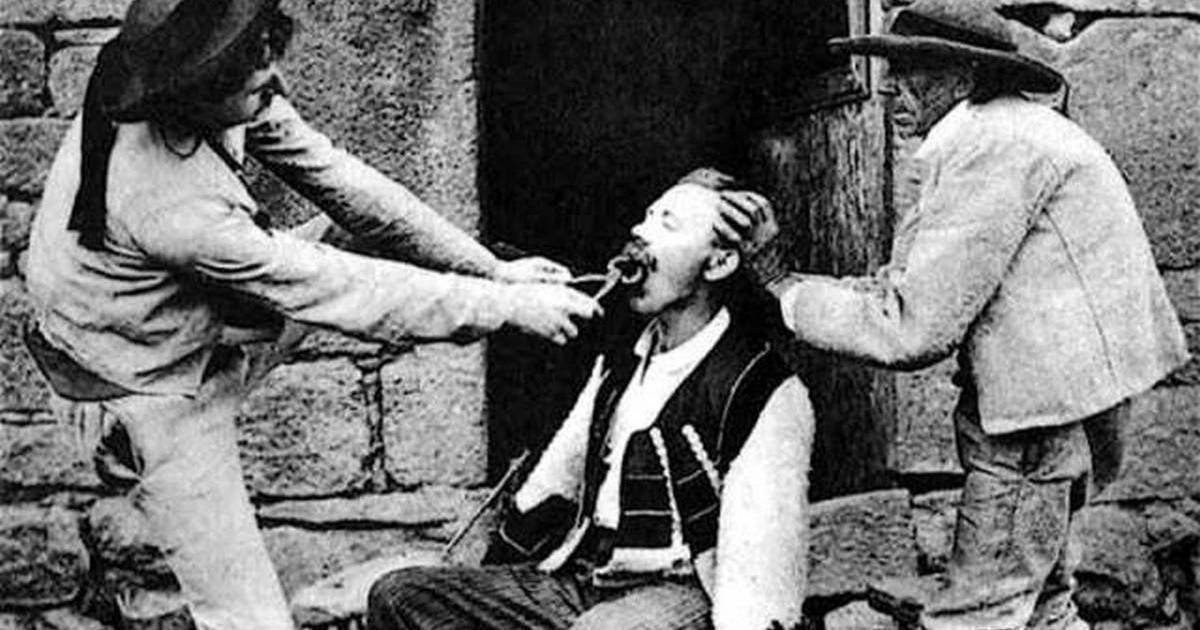 10фактов о стоматологии прошлого, после которого перестанешь бояться дантистов