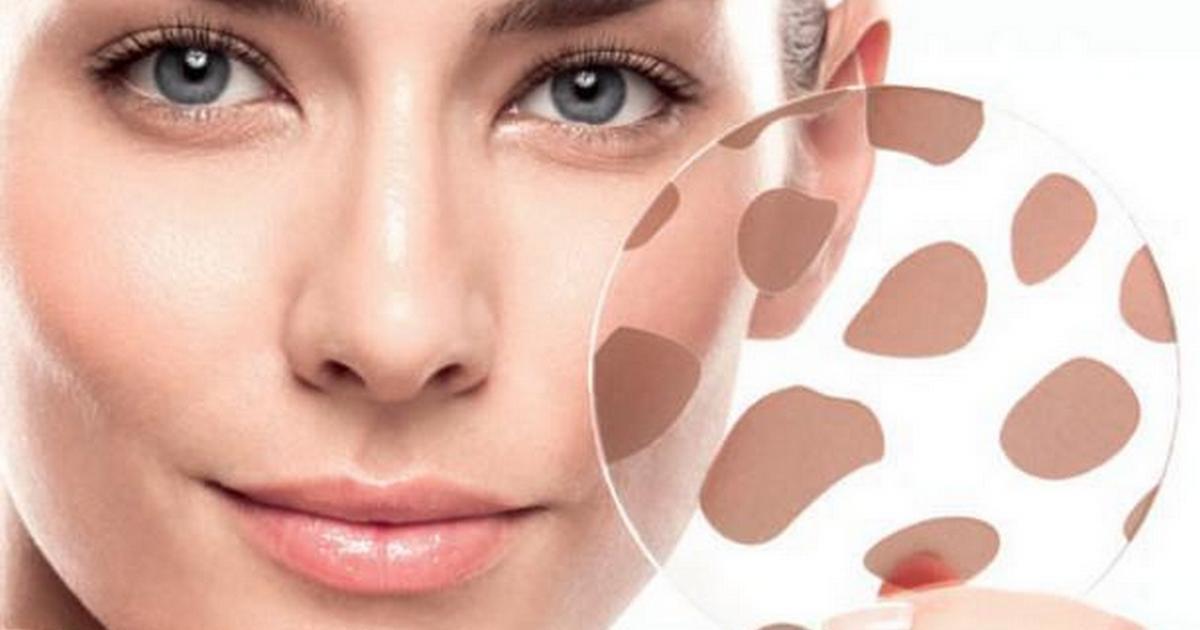 8 сигналов кожи лица о том, что в вашем организме присутствуют неполадки
